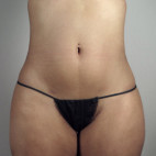 After Photo - Liposuction - Case #22045 - Liposuction of the Hips Patient 30 - Frontal View