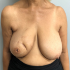 Before Photo - Breast Reconstruction - Case #22122 - DIEP Flap Breast Reconstruction on a 66 year old female  - Frontal View