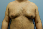 Before Photo - Gynecomastia - Case #22142 - Frontal View