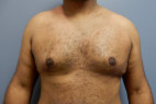 After Photo - Gynecomastia - Case #22142 - Frontal View