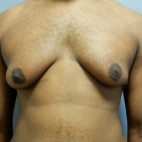 Before Photo - Gynecomastia - Case #22143 - Frontal View