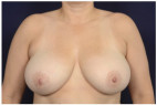 Before Photo - Breast Reduction - Case #22197 - Frontal View
