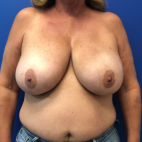 Before Photo - Breast Reconstruction - Case #22206 - Breast reconstruction on a 59 year old female - Frontal View