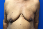Before Photo - Breast Reconstruction - Case #22230 - Breast Reconstruction on a 63 year old female - Frontal View