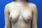 Before Photo - Breast Revision - Case #22420 - Breast Revision on a 36 year old female  - Frontal View