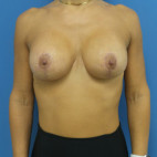 After Photo - Breast Augmentation - Case #22422 - 39 year old  -  Bilateral Breast Augmentation with Lift/Subglandular –  235cc Smooth, Soft, Low Profile Silicone Gel implants  -  2 1/2 months post-op - Frontal View