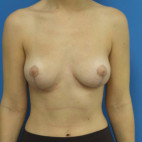 After Photo - Breast Reduction - Case #22511 - 27 year old  -  Bilateral Breast Reduction  -  2 months post-op - Frontal View