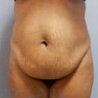 Before Photo - Tummy Tuck - Case #22591 - Abdominoplasty - Frontal View