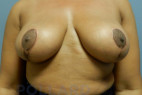 After Photo - Breast Lift - Case #22596 - Mastopexy - Frontal View