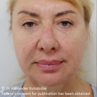 Before Photo - Facelift - Case #22727 - Deep Plane Face Lifting - Frontal View