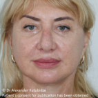 After Photo - Facelift - Case #22727 - Deep Plane Face Lifting - Frontal View