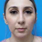 After Photo - Nose Surgery - Case #22729 - 30 year old  -  Open Rhinoplasty & Chin Augmentation   3 months post-op - Frontal View
