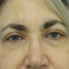After Photo - Eyelid Surgery - Case #22757 - 66 year old   -  Upper Blepharoplasty/Facelift  -  3 1/2 months post-op - Frontal View