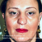 Before Photo - Nose Surgery - Case #22790 - 8 years after aging aesthetic functional rhinoplasty secondary to previous teen age septoplasty  - Frontal View