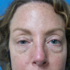 Before Photo - Eyelid Surgery - Case #22844 - 44 year old -  Upper Blepharoplasty with Ptosis repair and Transconjunctival Lower Blepharoplasty - Frontal View