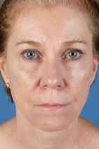 After Photo - Facelift - Case #22854 - Facelift - 57-year-old woman - Frontal View