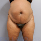Before Photo - Tummy Tuck - Case #22868 - Abdominoplasty - Frontal View