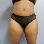 After Photo - Tummy Tuck - Case #22868 - Abdominoplasty - Frontal View