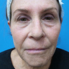 Before Photo - Eyelid Surgery - Case #22882 - 71 year old  -  Upper & Lower Blepharoplasty/Upper Lip Lift/Full Face TCA Peel  -  2 months post-op - Frontal View
