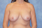 Before Photo - Breast Reduction - Case #22904 - Frontal View