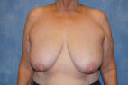 Before Photo - Breast Lift - Case #22906 - Frontal View