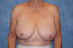 Before Photo - Breast Reduction - Case #22910 - Frontal View