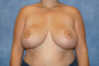 After Photo - Breast Reduction - Case #22913 - Frontal View