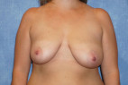 Before Photo - Breast Reduction - Case #22915 - Frontal View