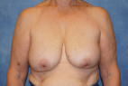After Photo - Breast Revision - Case #22922 - Breast Implant Removal - Frontal View