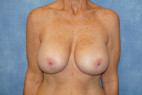 Before Photo - Breast Revision - Case #22930 - Breast Implant Removal - Frontal View