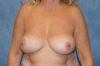 After Photo - Breast Revision - Case #22933 - Breast Implant Removal - Frontal View