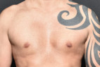 After Photo - Gynecomastia - Case #22954 - Frontal View