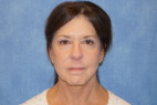 After Photo - Facelift - Case #22966 - Frontal View