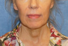 Before Photo - Facelift - Case #22975 - Frontal View