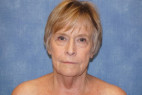 Before Photo - Facelift - Case #22977 - Frontal View