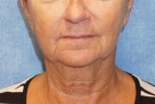 Before Photo - Facelift - Case #22978 - Frontal View