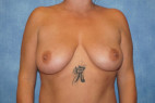 Before Photo - Breast Lift - Case #23003 - Frontal View