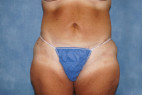 After Photo - Tummy Tuck - Case #23006 - Frontal View