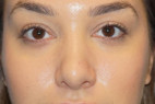 After Photo - Nose Surgery - Case #23007 - Rhinoplasty - Frontal View