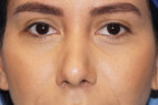After Photo - Nose Surgery - Case #23008 - Rhinoplasty - Frontal View