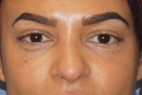 After Photo - Nose Surgery - Case #23012 - Rhinoplasty - Frontal View