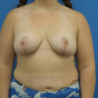 After Photo - Breast Lift - Case #23018 - 29 year old  -  Bilateral Breast Lift  -  4 months post-op - Frontal View