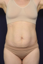Before Photo - Tummy Tuck - Case #23019 - Abdominoplasty - Frontal View