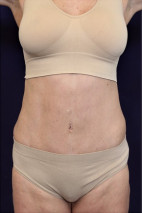 After Photo - Tummy Tuck - Case #23028 - Abdominoplasty - Frontal View