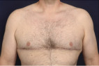 After Photo - Gynecomastia - Case #23032 - Frontal View