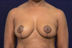 After Photo - Breast Lift - Case #23240 - Auto-Augmentation Mastopexy - Frontal View