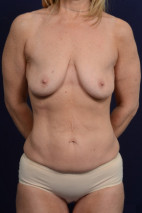 Before Photo - Mommy Makeover - Case #23248 - Frontal View