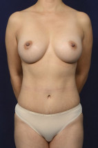 After Photo - Mommy Makeover - Case #23283 - Frontal View