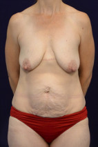 Before Photo - Mommy Makeover - Case #23284 - Frontal View