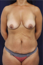 Before Photo - Mommy Makeover - Case #23285 - Frontal View